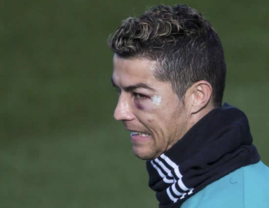 Cristiano Ronaldo trains with black eye after suffering bloody head injury in Real Madrid win against Deportivo
