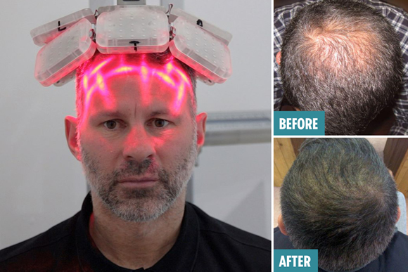 Ryan Giggs gets laser-zapping hair transplant after 'stress' of playing for Man United made him lose his locks